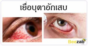 เยื่อบุตาอักเสบ ตาแดง โรคตา โรคติดเชื้อ