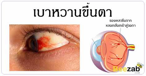 เบาหวานขึ้นตา โรคตา โรคไม่ติดต่อ โรคจากเบาหวาน