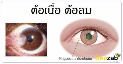 ต้อเนื้อ ต้อลม โรคตา ตาต้อ