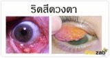 ริดสีดวงตา โรคตา ตาติดเชื้อ