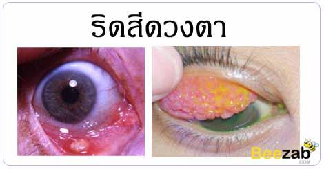 ริดสีดวงตา ตาติดเชื้อ โรคตา โรคติดเชื้อ