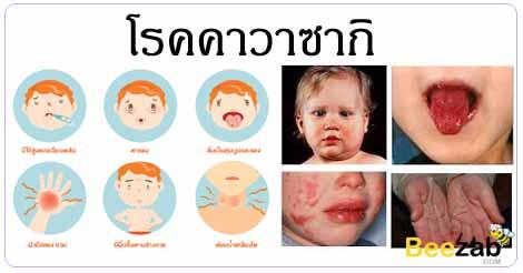 โรคคาวาซากิ โรคหัดญี่ปุ่น โรคเด็ก โรคหัวใจและหลอดเลือด
