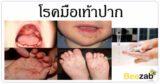 โรคมือเท้าปาก โรคติดต่อ โรคเด็ก โรคติดเชื้อ