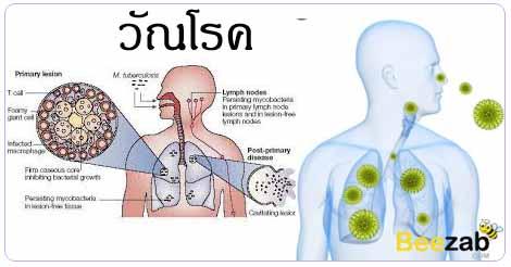 วัณโรค โรคติดต่อ โรคติดเชื้อ โรคทางเดินหายใจ