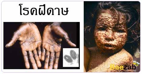 โรคฝีดาษ ไข้ทรพิษ โรคติดต่อ โรคติดเชื้อ