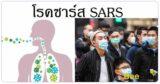 ซาร์ส SARS ไข้หวัดมรณะ โรคติดต่อ