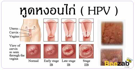 หูดหงอนไก่ HPV โรค โรคติดต่อทางเพศสัมพันธ์