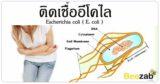 E.Coli โรค การติดเชื้อแบคทีเรีย แบคทีเรียอีโคไล