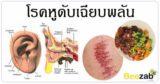 โรคหูดับ โรคติดเชื้อ โรคหู