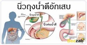 ถุงน้ำดีอักเสบ โรคไม่ติดต่อ โรค